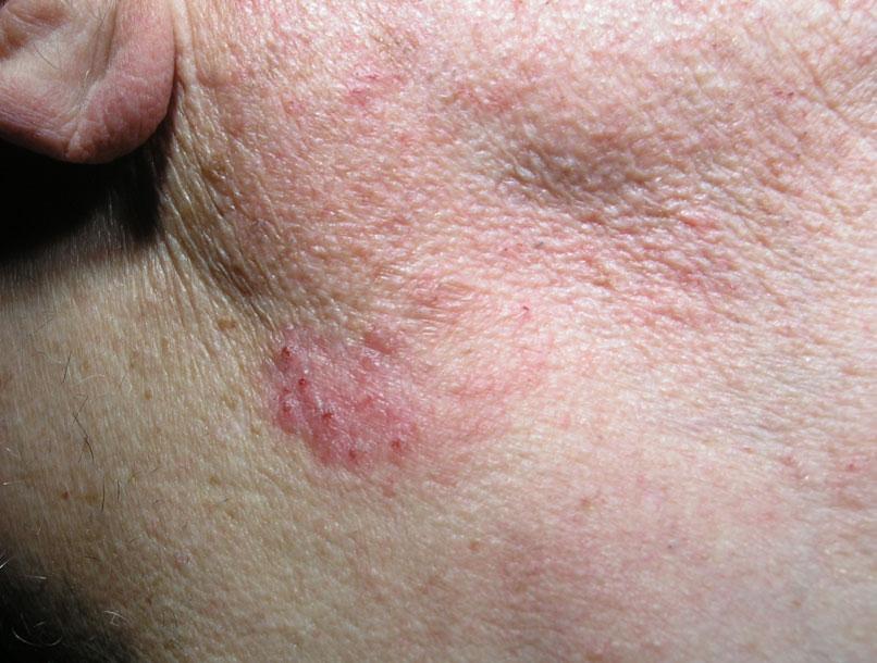 Aktinička-keratoza
