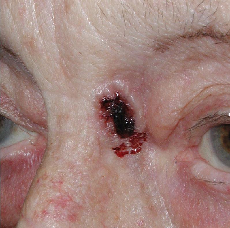 Bazocelularni-karcinom